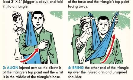 How to Make a Sling for an Injured Arm