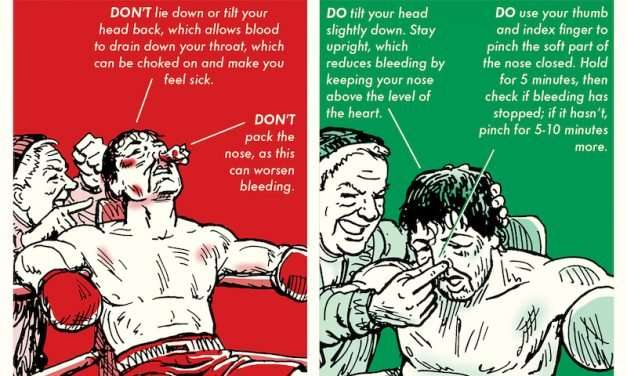 The Right Way to Stop a Nosebleed